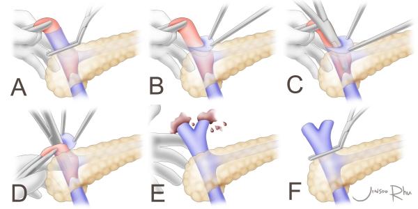 eversion-thrombectomy-figure-copy