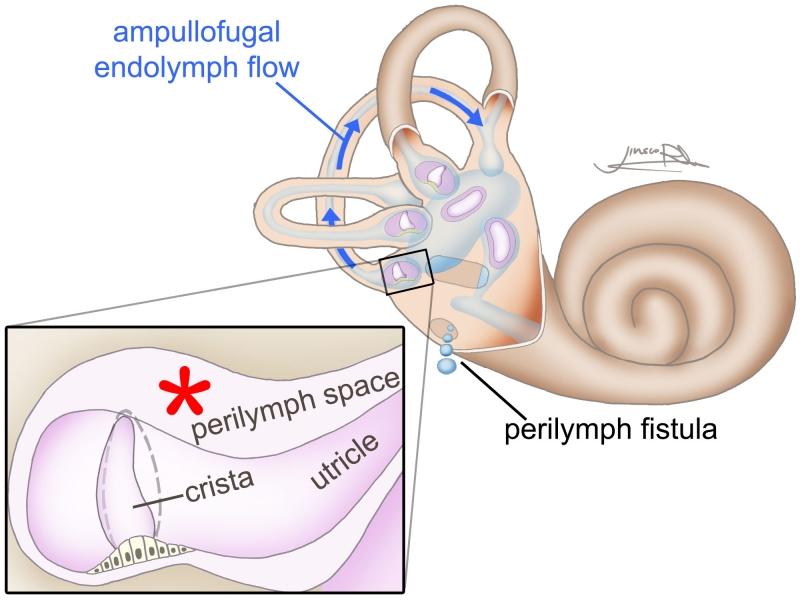 perilymph-fistula