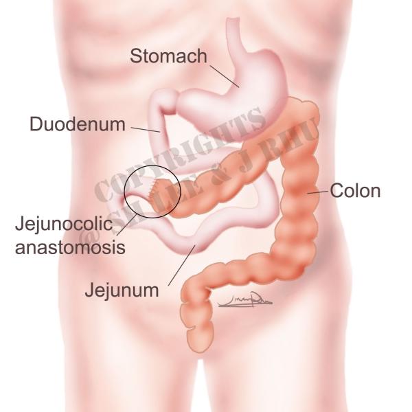 단장증후군 (Short bowel Syndrome) case illustration