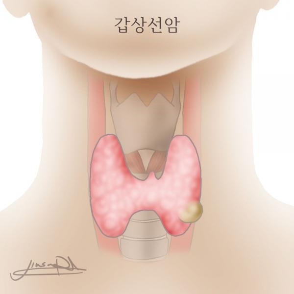 thyroid-cancer-copy