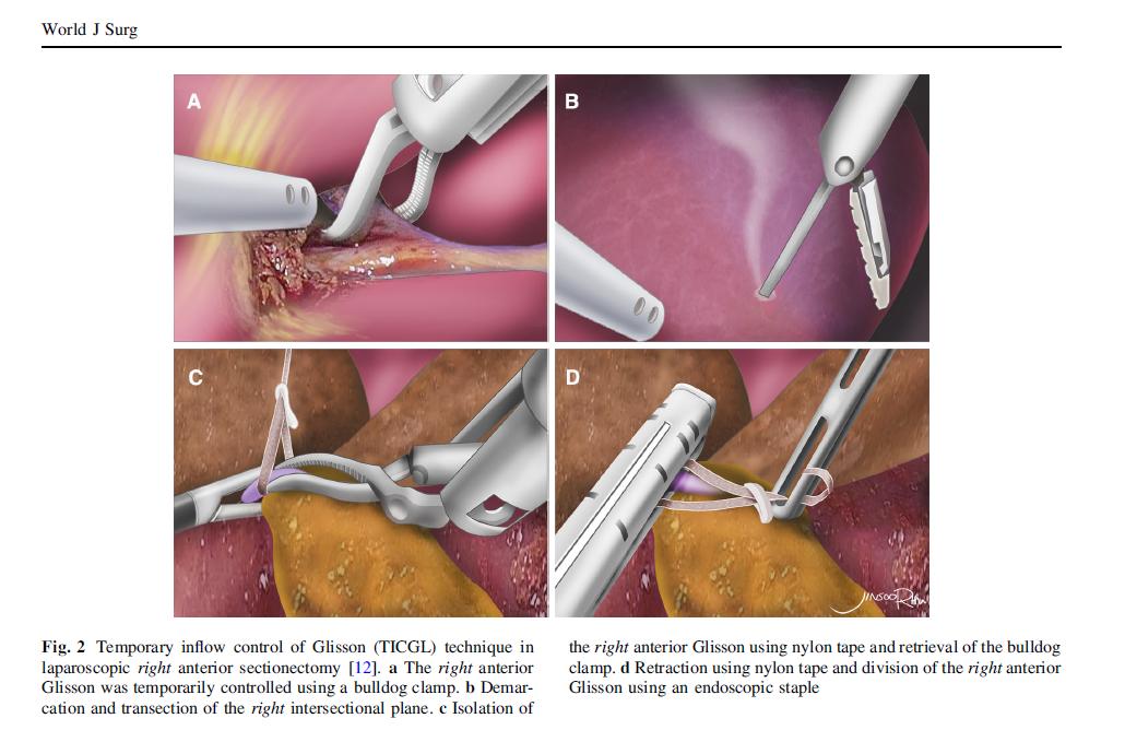 복강경하 일시적 간유입류차단술 수술 일러스트, Laparoscopic temporary inflow control of Glissonean pedicle