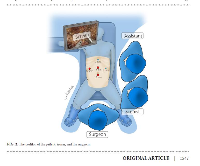 복강경 생체 간기증자 수술 포지션 Laparoscopic donor hepatectomy