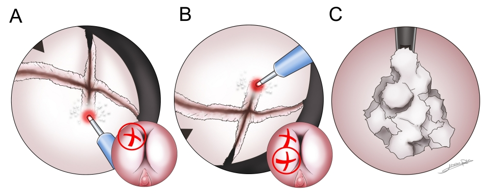 190909_holep_enucleation