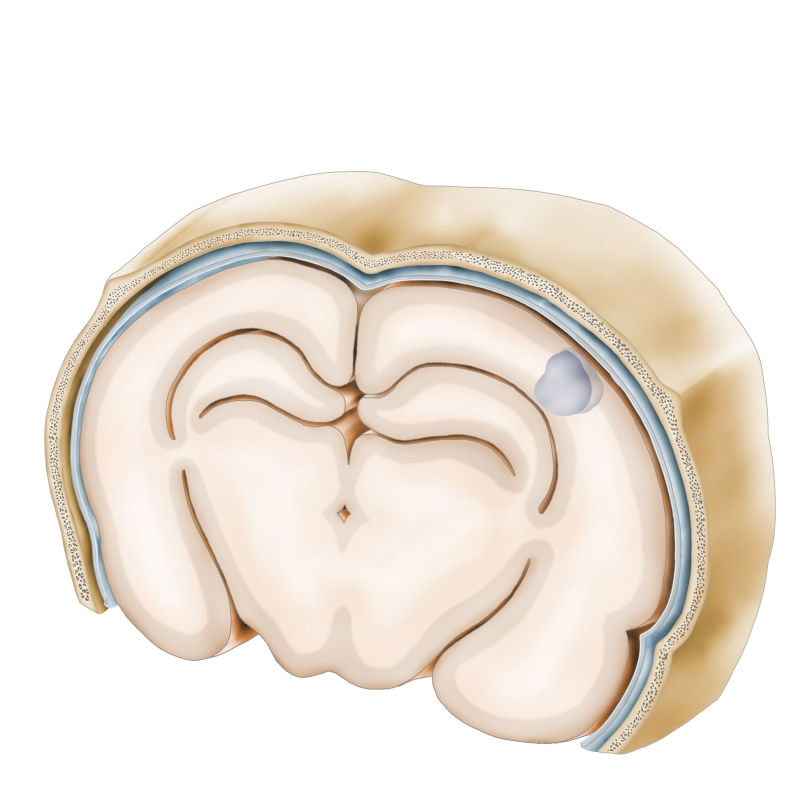 brain-transected-noscalp-2